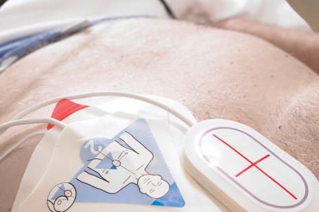 Electrodos hospitalarios y palas