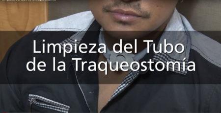 Limpieza del tubo de la traqueostomia